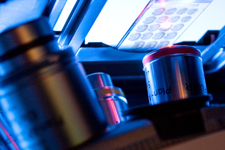 Reportage photographique sur la recherche scientifique au laboratoire UMR7592 à l'Institut Jacques Monod. Photographie de la technologie du module ApoTome reposant sur le principe de l'illumination structurée. L'image d'une grille est projetée dans le plan focal de la préparation et est déplacée dans trois positions bien définies. Une image est acquise par une caméra CCD dans chaque position, suite à quoi les trois images brutes sont transformées par calcul en une coupe optique d'un contraste supérieur et d'une résolution axiale accrue. Vue sur les optiques du microscope. Coupe de cerveau d'animaux.